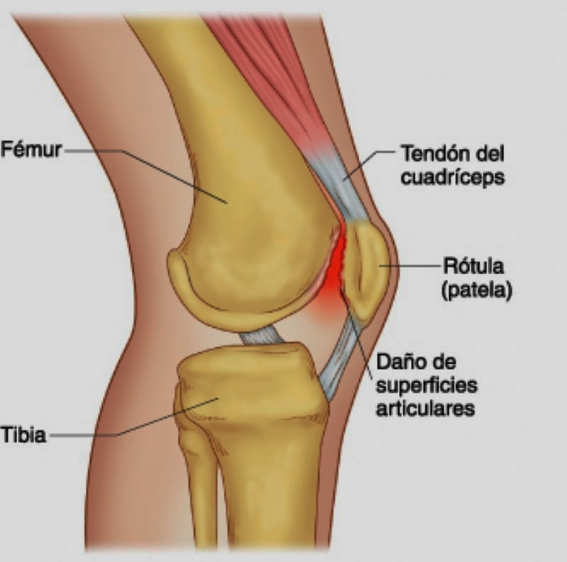 List of Synonyms and Antonyms of the Word: Rodilla