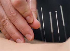 SEMINARIO DE ACUPUNTURA Y DOLOR: Técnicas de acupuntura