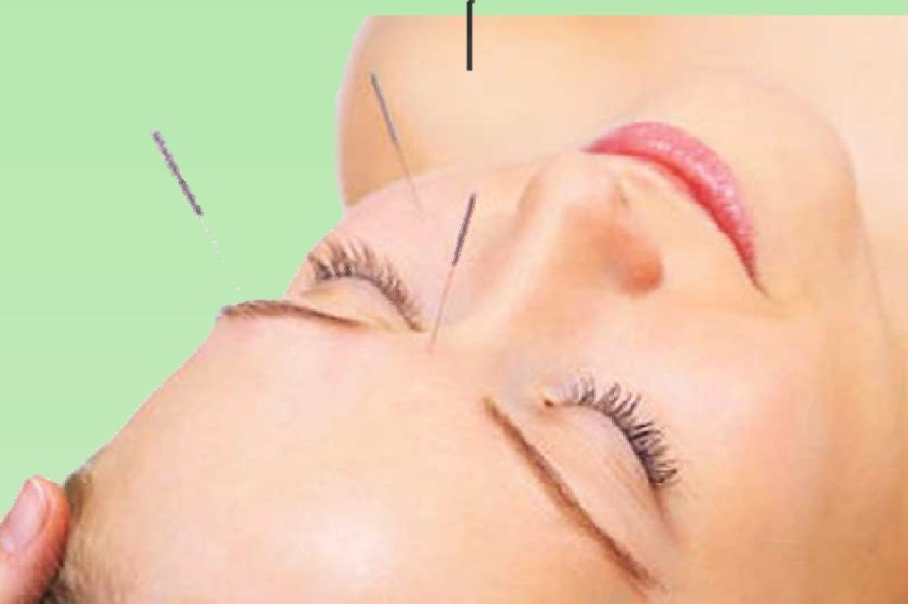 SEMINARIO LIFTING FACIAL