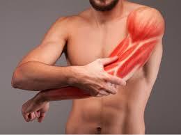 """¿Qué significa la expresión """"se me ha montado un músculo""""? ¿Cómo lo podemos remediar?"""